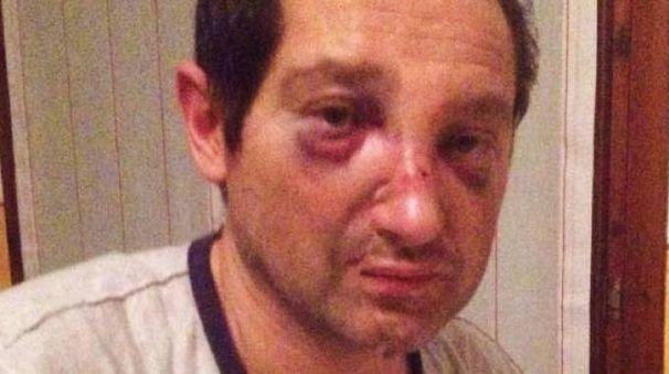 Adriano Balestra dopo l'aggressione (De Pascale)