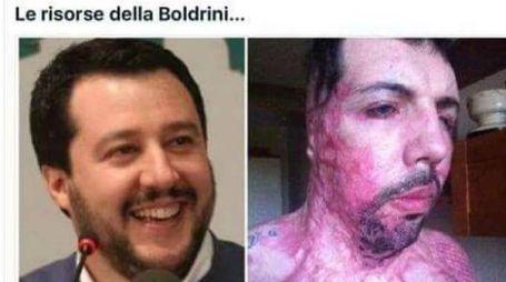 CRUDELTÀ La bufala che circola in Rete e che accosta, cercandone la somiglianza, il volto di Salvini a quello di Pezzulo facendo credere che il politico sia stato vittima di un attacco