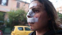 Il volto tumefatto di Maksim Veronesi, 26 anni (foto Schicchi)
