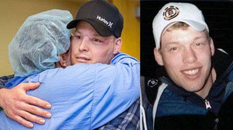 Andy Sandness dopo la riabilitazione. A destra in una foto da ragazzo (Mayo Clinic)