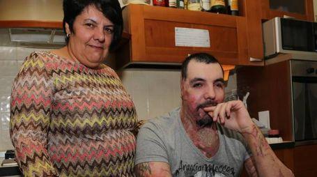 Fiorella Pezzulo con il figlio William, sfregiato con l'acido dall'ex fidanzata Elena Perotti insieme a un complice
