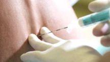 L'INIEZIONE Un anestesista al lavoro