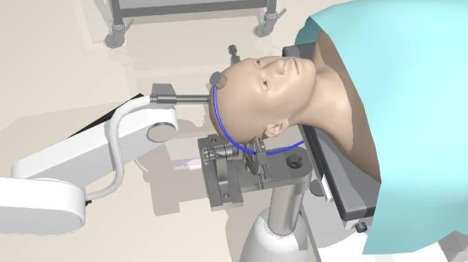 Operazione al cervello 3D (omnimil)