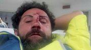 IN AMBULANZA Tomas Sanchioni, 40enne ambulante. Ha riportato la frattura del setto nasale e dovrà sottoporsi a un intervento