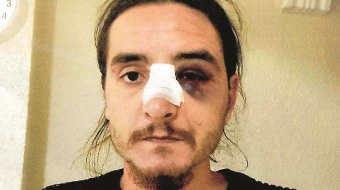 Marcello Cenci era già stato picchiato in passato da Eder Guidarelli