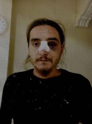 Marcello Cenci dopo uno dei pestaggi