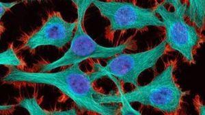 Tumore, cancri, cellule tumorali: foto generica  (DIRE)