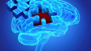 Alzheimer, scoperta l'origine. E' nell'area che regola l'umore