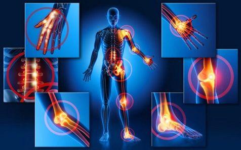 Artrite reumatoide, a 30.000 malati negati farmaci biologici