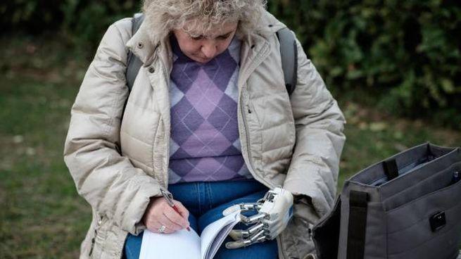 Almerina Mascarello, la donna a cui è stata impiantata la mano bionica (Ansa)