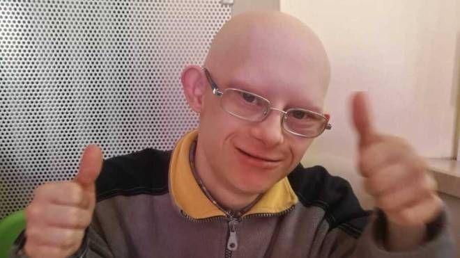 Francesco, affetto da sindrome  di Down