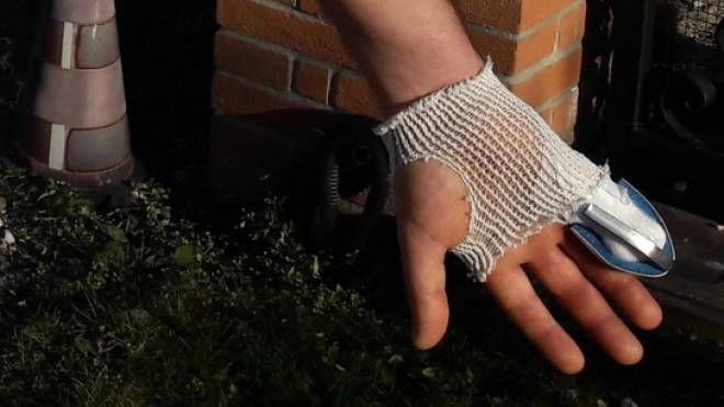 La mano fasciata del 44enne (foto Radogna)