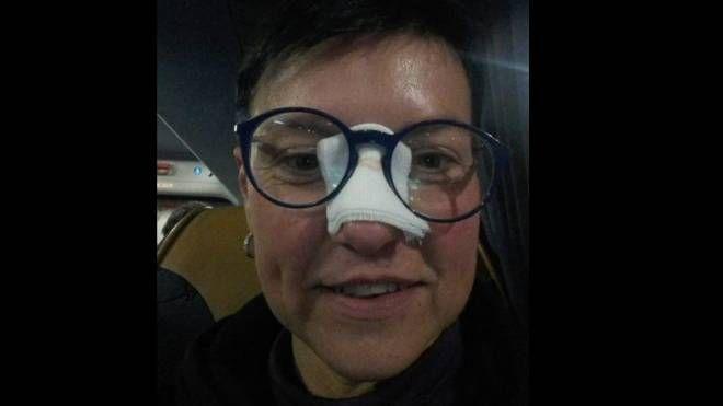 Elena Di Martino colpita da una pallonata da CR7