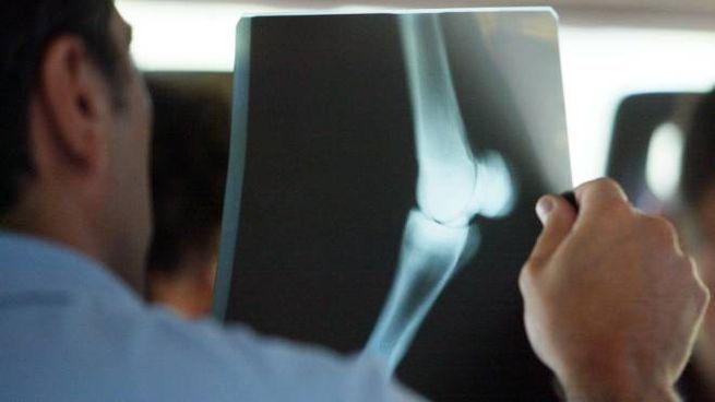 Una radiografia (foto di repertorio)
