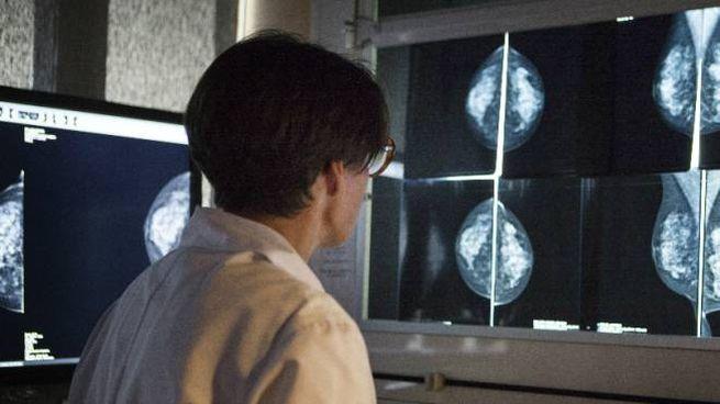 Una donna di 50 anni è morta per una tardiva diagnosi di tumore al seno