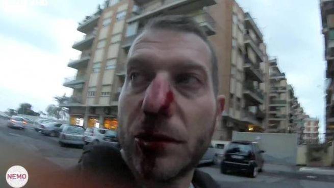 Il giornalista Daniele Piervincenzi con il naso rotto dopo l'aggressione (Ansa)
