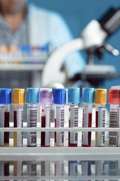 Mosaico, il test su larga scala per un possibile vaccino