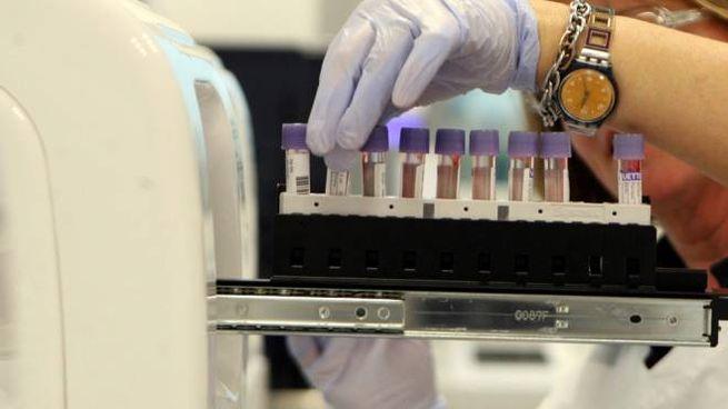 Laboratorio di analisi del sangue