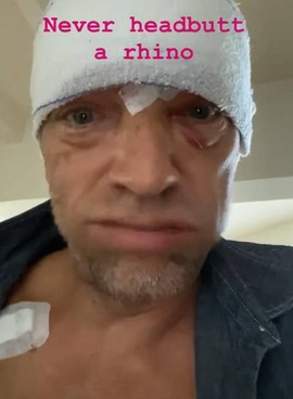 Vincent Cassel dopo l'incidente su Instagram
