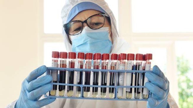 Test sierologici, esami per rilevare gli anticorpi da coronavirus (Cusa)