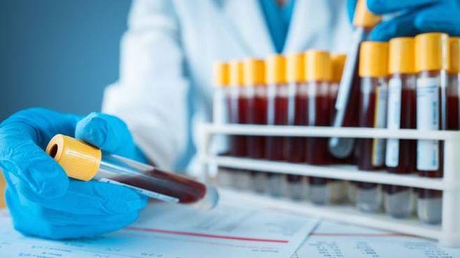 Un test rapido per scovare i superbatteri nel sangue
