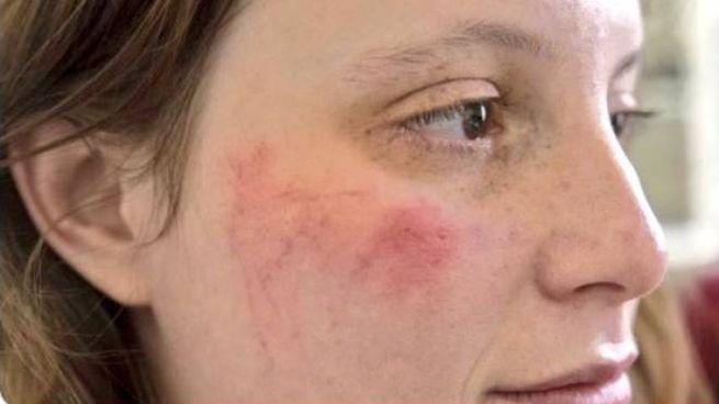 Tay Calenda ferita in piazza in Francia