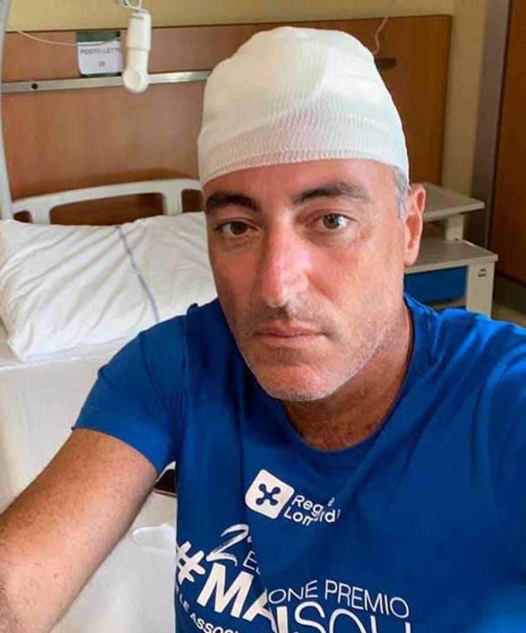 Ad agosto Giulio Gallera mentre è in vacanza in Liguria batte. la testa contro un'inferriata giocando a paddle e posta le foto sui social