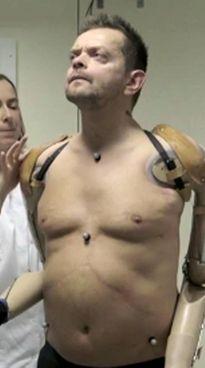 Felix Gretarsson è senza arti da 23 anni