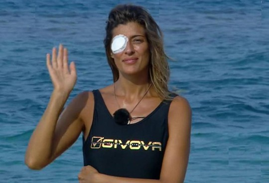 Elisa Isoardi (38 anni) con la benda sull'occhio prima di abbandonare Playa Palapa