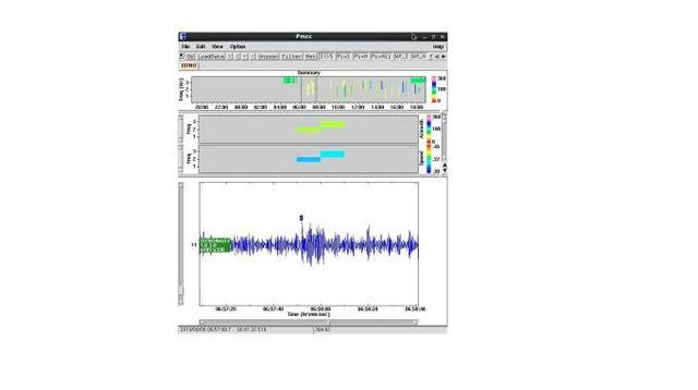 Tracciato audio della stazioni radio CTBOT che ha intercettato l'evento