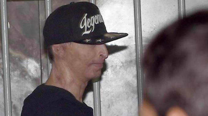 Stefano Savi fu aggredito secondo gli inquirenti dalla coppia dell'acido per uno scambio di persona