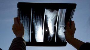 Radiografie, raggi x, fratture ossa: foto generica