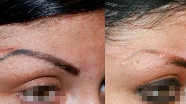 Aumenta il numero dei pentiti del tatuaggio: i risultati del trattamento laser su alcuni pazienti