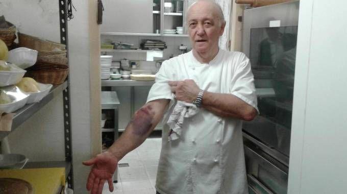 Mario Cattaneo mostra il livido sulle braccia dopo la colluttazione (Ansa)