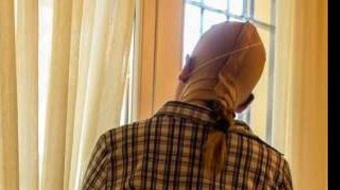Com'è oggi Gessica Notaro, sfregiata dall'acido (foto Angelo Van Shaik dal Daily Mail)