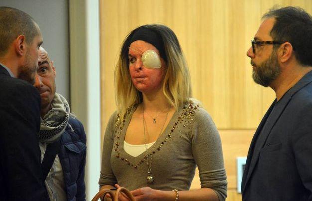 Rimini, Gessica Notaro in tribunale contro l'ex fidanzato per il processo di stalking (foto Manuel Migliorini)