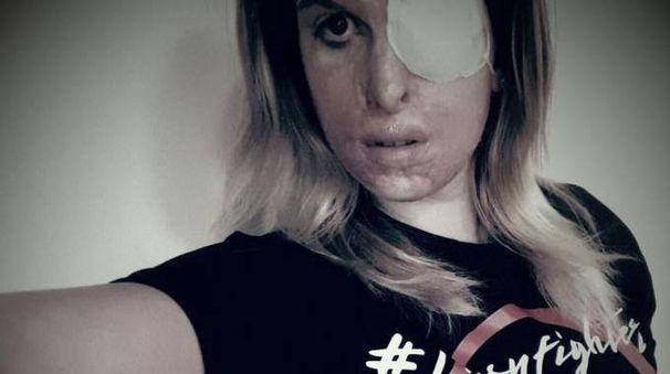Gessica Notaro con la t-shirt del progetto #Lovyfighters