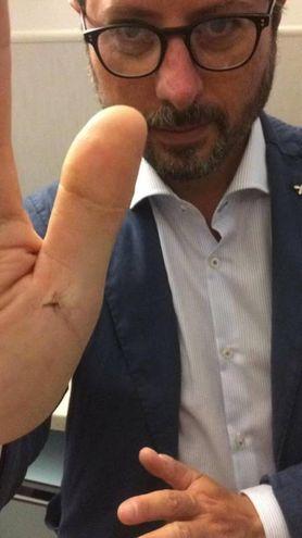 Francesco Borrelli, consigliere regionale dei Verdi, mostra una zanzara appena uccisa (Ansa)