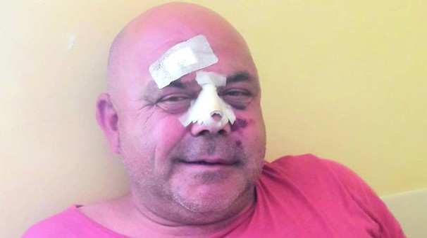 Luciano Olivanti, 54enne gestore del ristorante 'La Fenice', ha subito un assalto brutale in casa