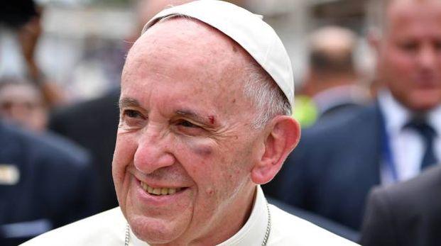 Papa Francesco ferito al viso dopo un incidente in Papamobile (foto Reuters)