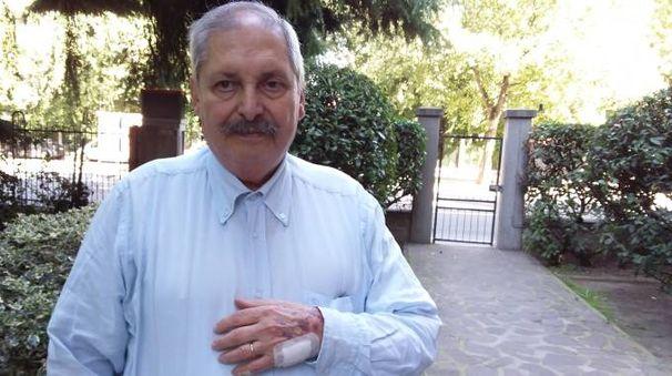 Roberto Cepelli, 71enne, mostra la mano tumefatta e coperta dai lividi dopo lo strappo dell'orologio da parte di una giovane