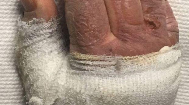 Una delle mani ustionate della 58enne
