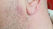 Sulla guancia del proprietario 39enne è restato un segno rosso e una lieve bruciatura. Proprio accanto al lobo dell'orecchio sinistro (Foto Petrelli)