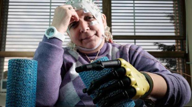 Almerina Mascarello, la donna a cui è stata impiantata la mano bionica (foto Ansa)