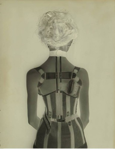 Una delle lastre con, di spalle, una ragazza che indossa un corpetto ortopedico
