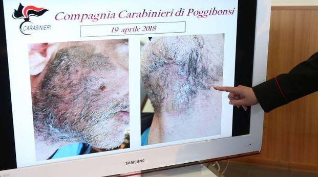 Il volto sfregiato dell'uomo mostrato dai carabinieri