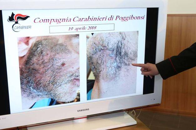 Il volto dell'uomo sfigurato (Foto Dipietro)