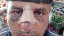 Ahmed ha il setto nasale fratturato. Ha chiesto aiuto ai carabinieri