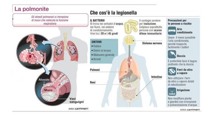 Legionella e polmonite (Centimetri)