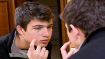C'è una connessione tra acne e depressione - Foto: Syldavia/iStock